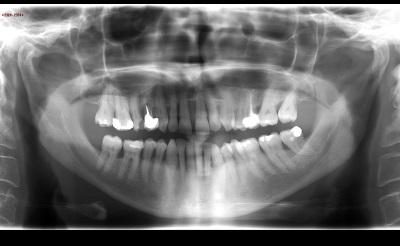 Cabinet de radiologie imagerie du bocage - Cabinet de radiologie scanner ...
